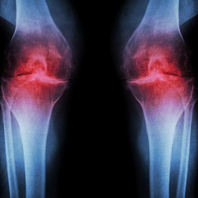 Osteoartrita sau poliartrita? Ce le diferentiaza