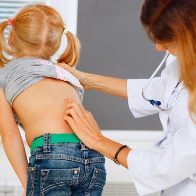 Coloana vertebrala – posibile probleme la varsta copilariei