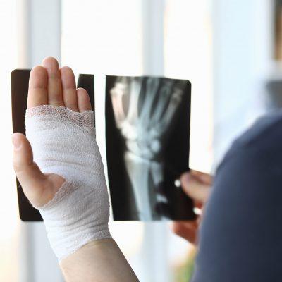 Consecinte ale fracturilor netratate