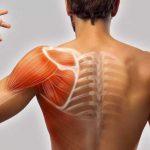 Managementul contracturilor musculare