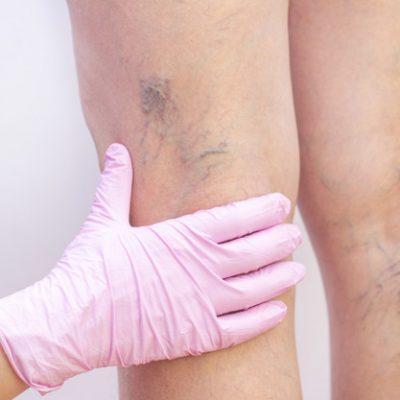 Varicele – mic ghid de diagnostic si tratament